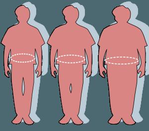 obesity-waist-circumference